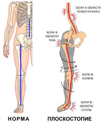 Изменения в организме от плоскостопия