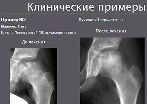 Клинические примеры болезни Пертеса