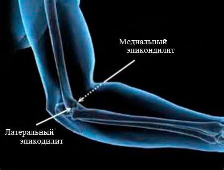Причины латерального эпикондилита локтевого сустава
