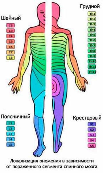 Локализация онемения в зависимости от пораженного сегмента спинного мозга