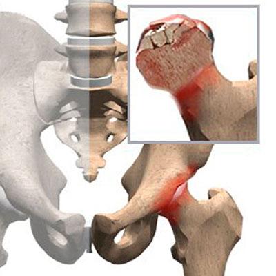 Отмирание части головки бедра и воспаление при болезни Пертеса