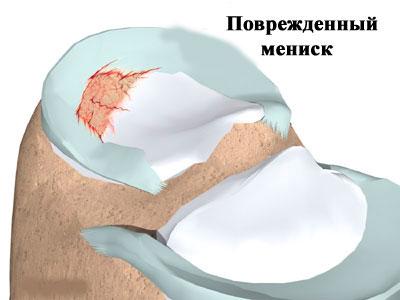 Повреждённый мениск
