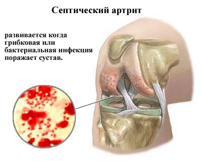 Инфекционный септический артрит
