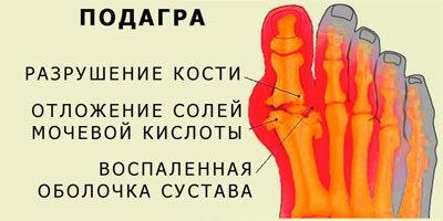 Схема: подагра разрушение кости