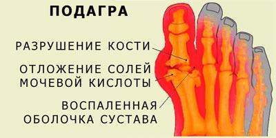Схема подагра разрушение кости