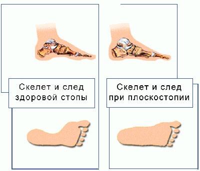 След здоровой и больной стопы при плоскостопии