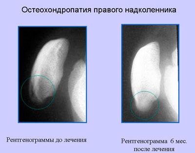 Снимки болезни Осгуда-Шлаттера до и после лечения