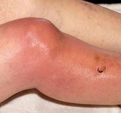 Вирусный артрит покраснение вокруг сустава