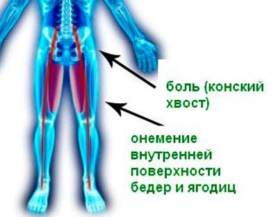 Зависимость онемения от боли в