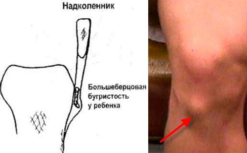 Болезнь Осгуда-Шлаттера схема и внешние проявления