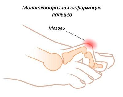 Молоткообразная деформация пальцев