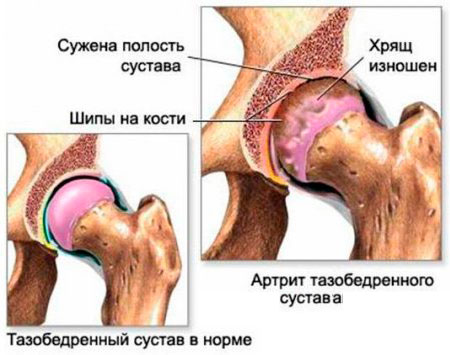 Норма и артрит тазобедренного сустава