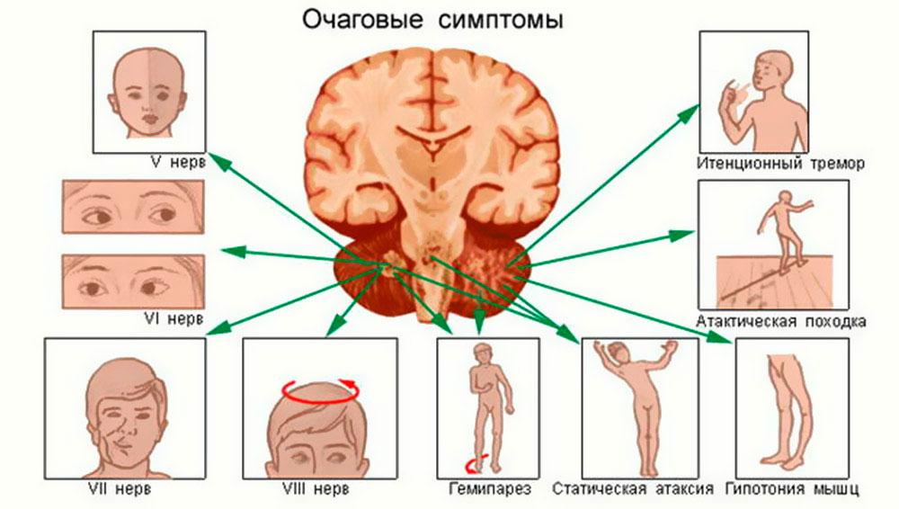 Очаговые симптомы