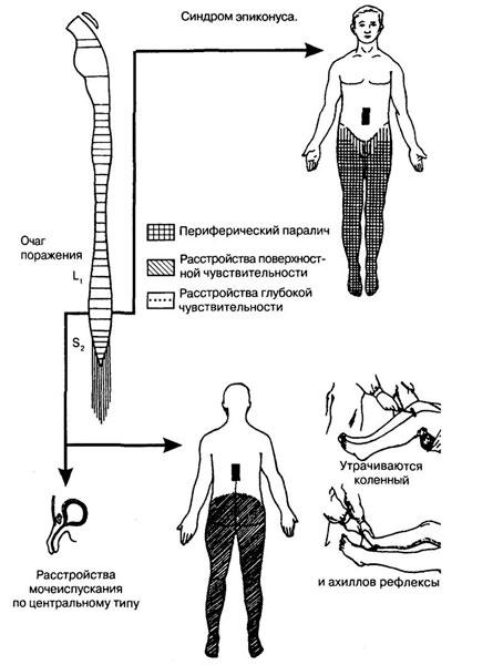 Синдром эпиконуса