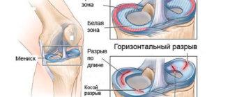 Типы разрыва мениска коленного сустава