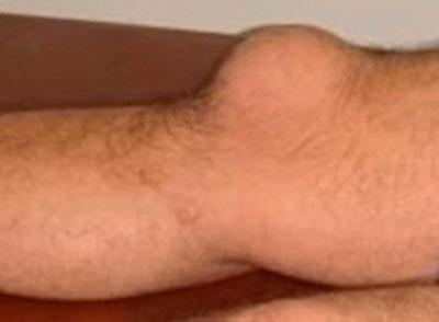 Бурсит: внешний вид колена