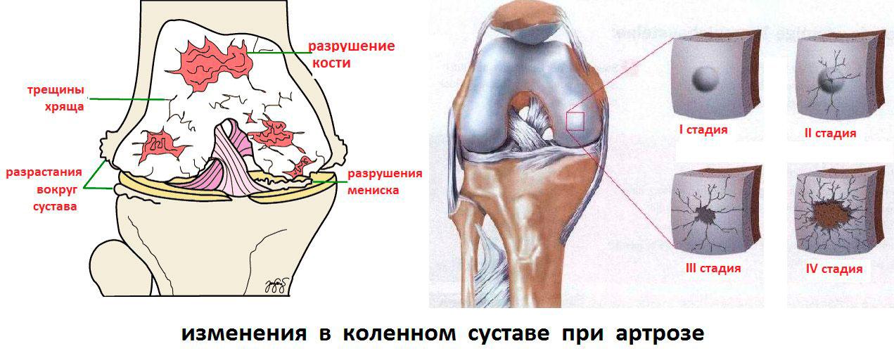 Изменения в коленном суставе при артрозе