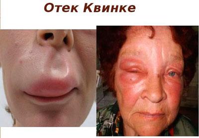Отёк Квинке