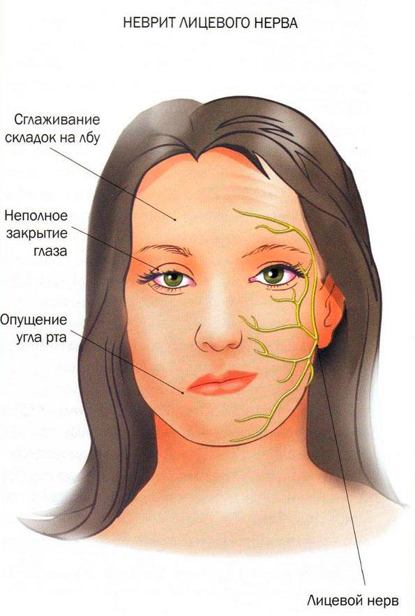 аллергия на весну фото