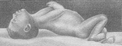 Регидность зытылочных мышц