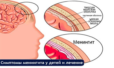 Симптомы менингита