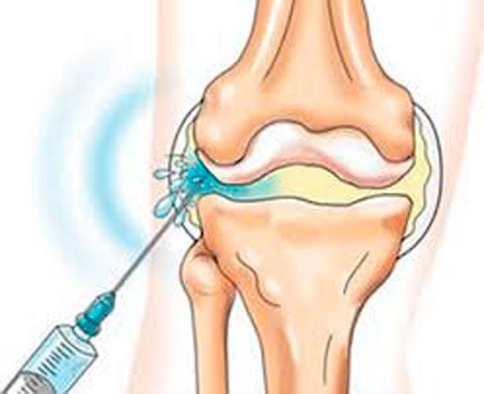 Лечение шейного остеохондроза медикаментозное - отзывы пациентов