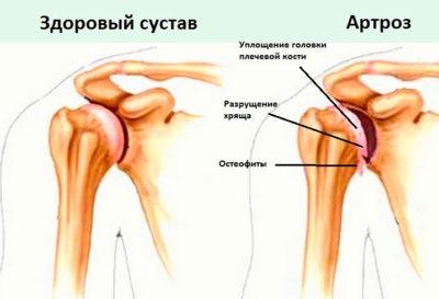 Артроз плеча и здоровый сустав