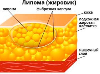 Липома (жировик)