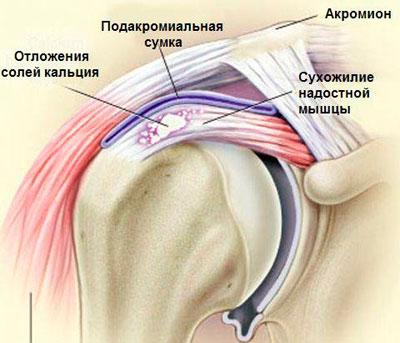 Отложение солей кальция в плечевом суставе