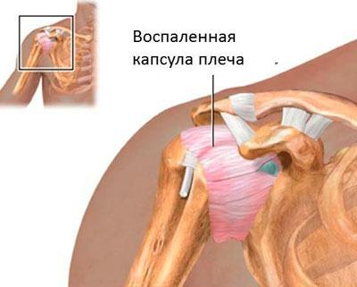 Воспалённая капсула плеча