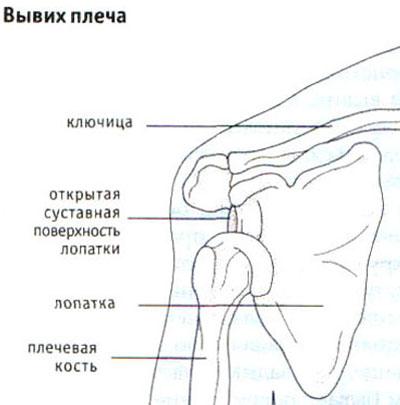 Вывих плеча