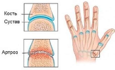 Артрит пальцев рук причины симптомы лечение