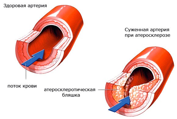 Здоровая артерия и при атеросклерозе