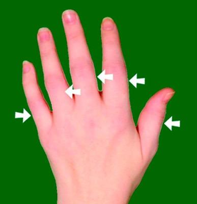 Опухший сустав пальца на руке