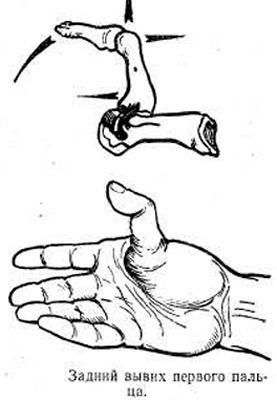 Вывих большого пальца руки