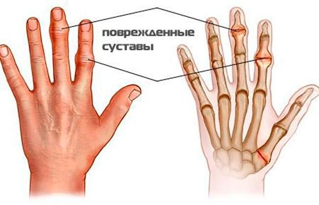 Опух и болит сустав на пальце руки что делать и как лечить