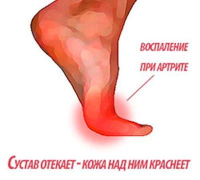 Артрит пальцев ног
