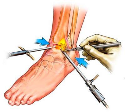 Боль в голеностопном суставе и хирургическое лечение