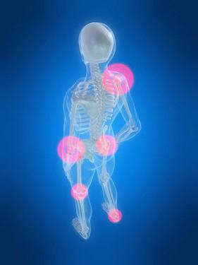 Изображение - Лечение боли в спине и суставах p239_0_15_010