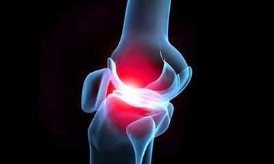 Изображение - Лечение боли в спине и суставах prichiny-boleznej-sustavov-i-ix-profilaktika