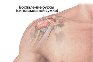 Изображение - Боли и хруст в плечевом суставе лечение 12-4