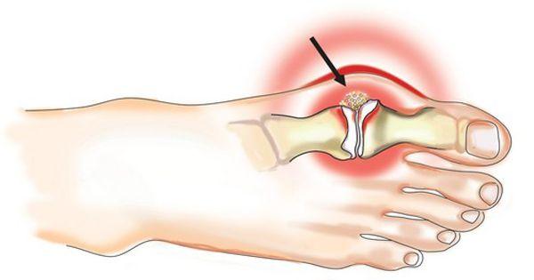 После ушиба увеличился сустав проявления и лечение отечности при ушибе колена