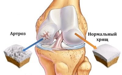Что делать при болях в коленном суставе при беременности