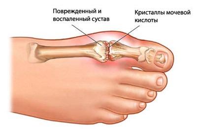 болят пятка левой ноги
