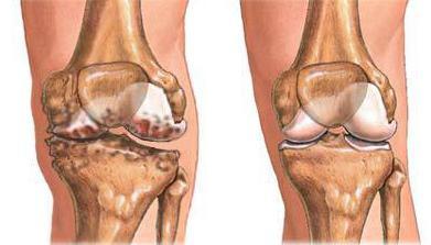 Болит и хрустит колено что делать и чем лечить