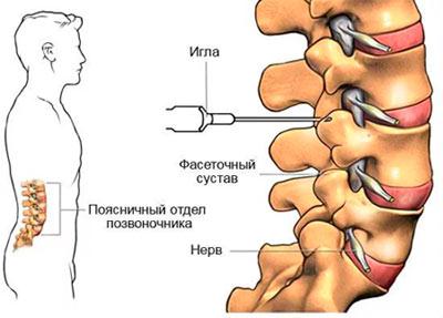 Изображение - Блокада сустава ноги Intraartikulyarnaya-blokada