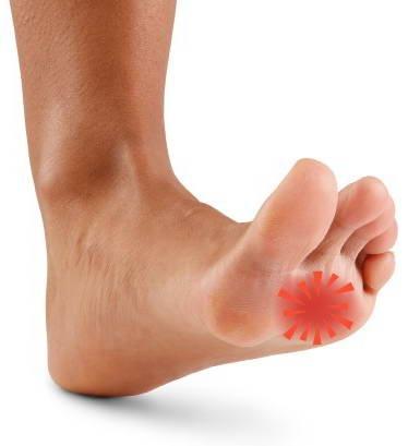 Болят подушечки на стопах ног до пальцев