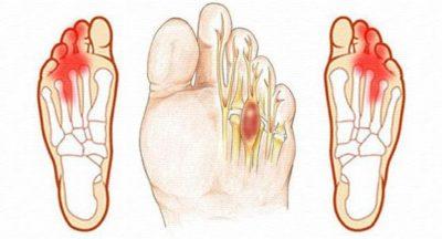 Резкая боль в пальцах ног при ходьбе