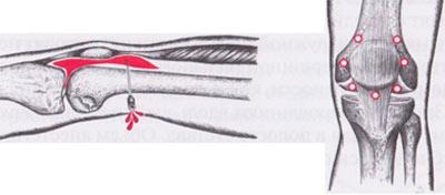 Изображение - Блокада сустава ноги Paraartikulyarnaya-blokada