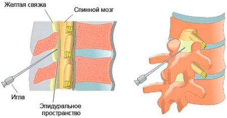 Изображение - Блокада сустава ноги Periartikulyarnaya-blokada